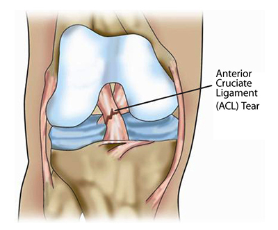 The Anterior Cruciate Ligament (ACL)