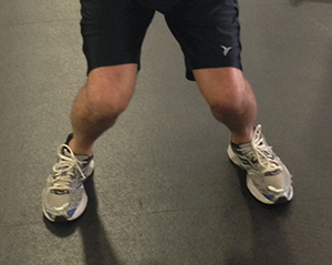 Figure 5. Knee Valgus